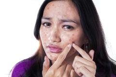 Unhappy girl touching pimple on cheek - stock photo