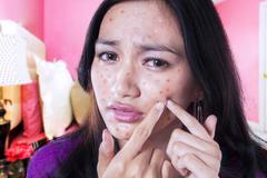Teenage girl touching acne on her cheek Stock Photos