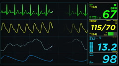 Medical monitor Screen on Normal Heart Rate Loop Stock Footage