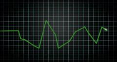 Heart Monitor Animation Stock Footage