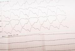 ECG tape with paroxysmal ventricular tachycardia and ventricular asystole - stock photo
