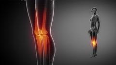 KNEE  bone skeleton x-ray scan in black Stock Footage