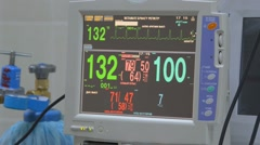 ECG monitor in reanimation Stock Footage