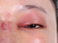 Close-up of upper eye lid swell after nose job Stock Photos