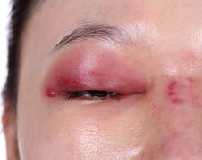 close-up of upper eye lid swell after nose job - stock photo