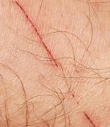 Scratch on the skin of the feet Kuvituskuvat