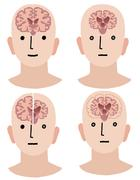Brains of Dementia and Healthy man Stock Illustration