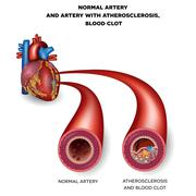 Normal artery and unhealthy artery with blood clot - stock illustration
