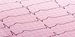 cardiogram of heart beat - stock photo