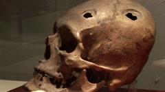 Head Trempanation, Historic Operation, Peru, South America Stock Footage