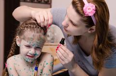 Mom plaster zelenkoj child with chickenpox sores - stock photo