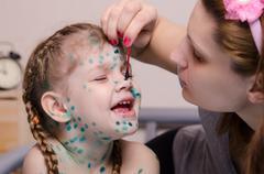 Mom misses zelenkoj sores in a child with chickenpox - stock photo