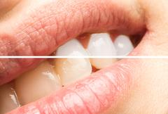 Woman Teeth Before And After Dentist Whitening Procedure - stock photo