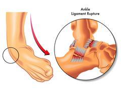 Stock Illustration of ankle ligament rupture