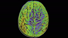 Colorful changing scan of human brain Stock Footage