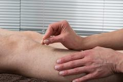 Man Undergoing Acupuncture Treatment- Gall bladder - stock photo