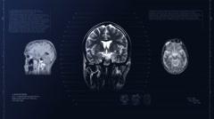 Head MRI scan. Loop. Xray Stock Footage