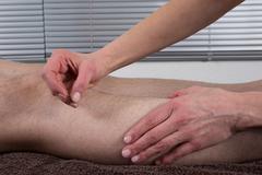 Man Undergoing Acupuncture Treatment- Gall bladder - stock photo