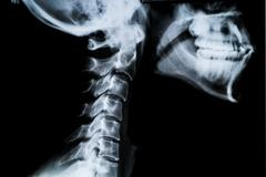 X ray neck and Jaw - stock photo