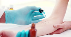 Doctor doing skin prick test at his patient Stock Footage
