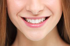 Woman smile. Teeth whitening concept. - stock photo