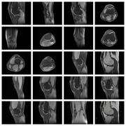 Collage of medical magnetic resonance imaging Stock Photos