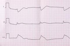 Tape ECG after clinical death and successful resuscitation Stock Photos