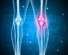 Knee pain Piirros