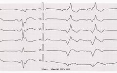 Tape ECG with acute period of myocardial infarction - stock photo