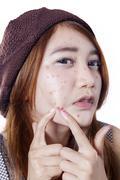 Teen girl pressing her pimple Kuvituskuvat