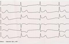 ECG with acute period of macrofocal myocardial infarction - stock photo