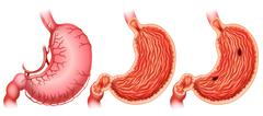 Stomach Stock Illustration