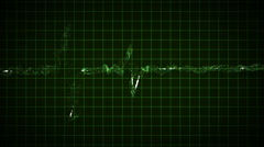 EKG heartbeats loop - stock footage