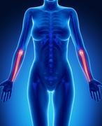 ULNA blue x--ray bone scan - stock illustration