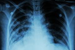 Pulmonary Tuberculosis ( TB )  :  Chest x-ray show alveolar infiltration at b - stock photo