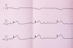 ECG with acute period of macrofocal myocardial infarction, AV block II degree Stock Photos