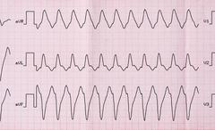 Emergency Cardiology. ECG with paroxysm correct form of atrial flutter with a - stock photo
