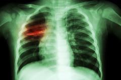 Pulmonary Tuberculosis ( Chest X-ray of child : show patchy infiltration at r Kuvituskuvat