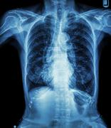 Chest X-ray of old patient ( calcification at rib , trachea , bronchus ) Stock Photos