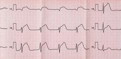 Stock Photo of ECG with acute period macrofocal widespread anterior myocardial infarction