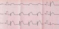 ECG with acute period macrofocal widespread anterior myocardial infarction Stock Photos