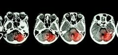 Stroke  ( CT scan of brain and base of skull and Stroke ) - stock photo