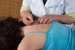 Bright caucasian woman receiving an acupuncture treatment in a health spa - stock photo