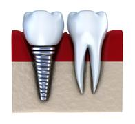 Dental implant - implanted in jaw bone. Isolated on white Stock Illustration