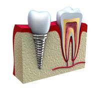 Anatomy of healthy teeth and dental implant in jaw bone. - stock illustration
