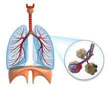 Alveoli in lungs - blood saturating by oxygen - stock illustration
