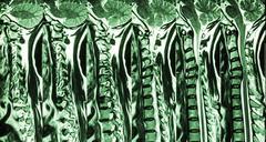 Cervical spondylosis with disc herniation ( MRI of cervical spine : show cerv Stock Photos