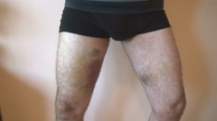 Man in underwear showing black bruise on both legs, human pain, physical contact Stock Footage