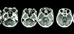 CT scan of brain and base of skull ( show structure of eye , ethmoid sinus , - stock photo