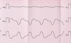 Tape ECG with paroxysmal ventricular tachycardia - stock photo
